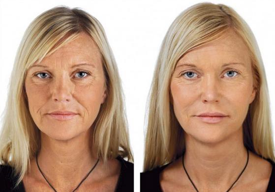 Fjern år fra ansiktet: Soft facelift