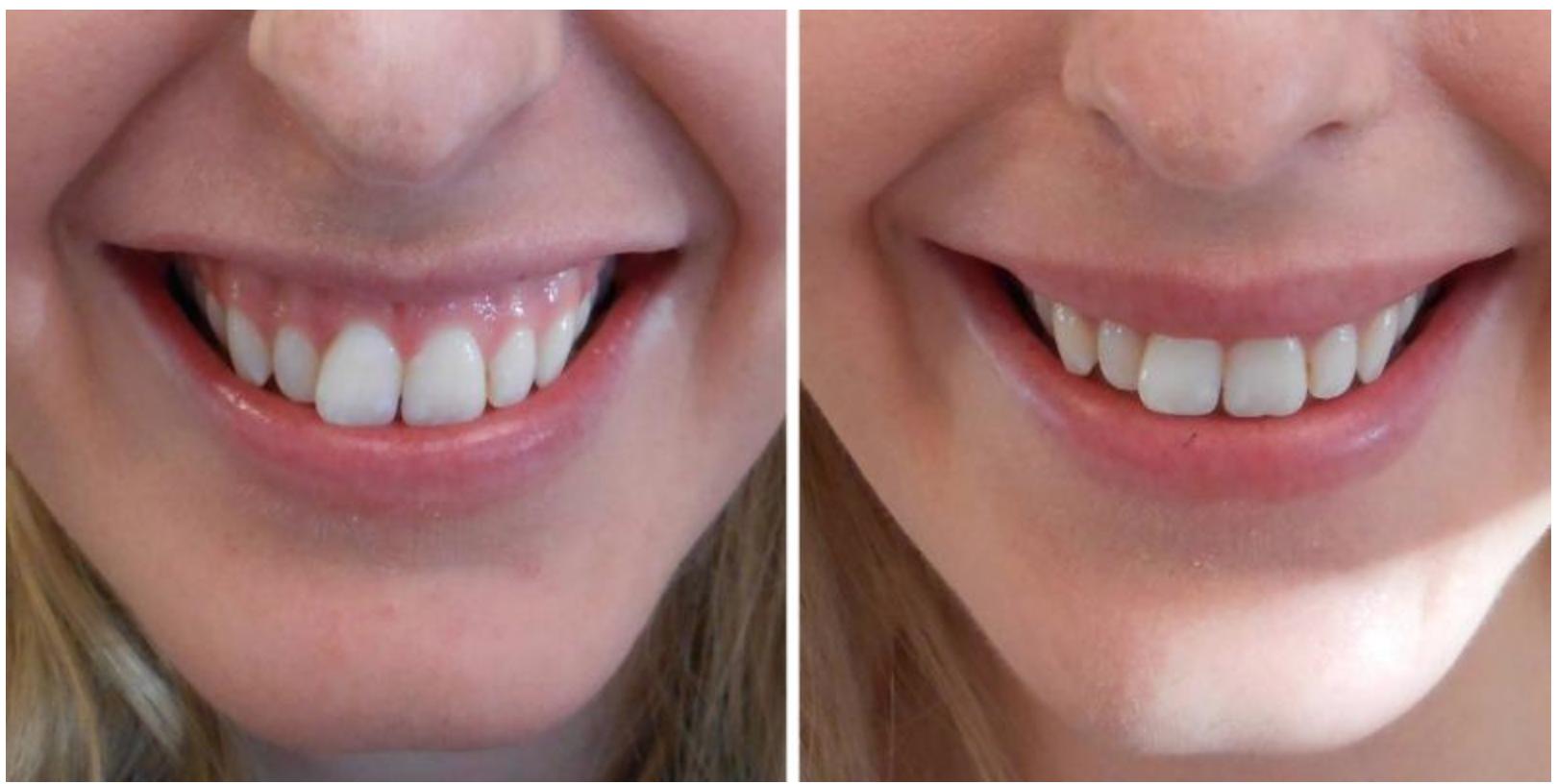 Tannkjøttsmil/Gummy smile