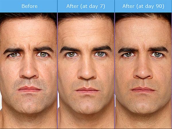 botox-man-3-steps