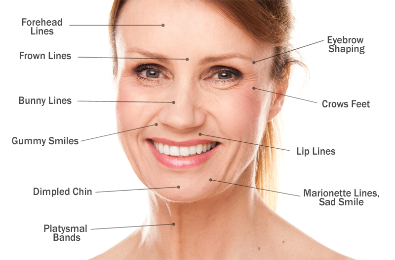 botox-injection-sites