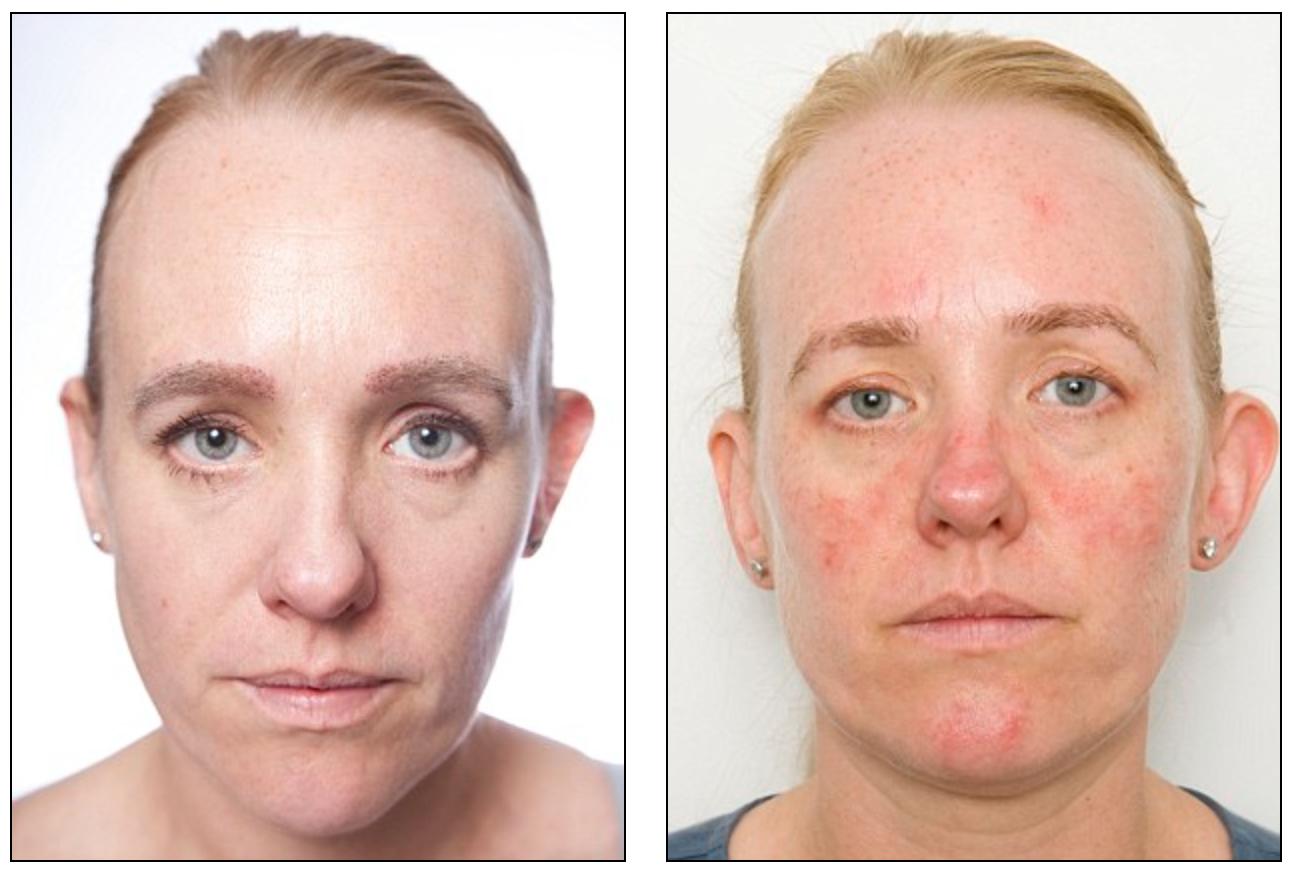 En mnd uten å fjerne makeup: Før og etter